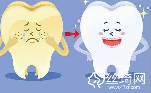洗牙的危害有哪些 洗牙的注意事项