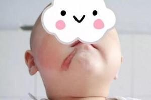 """如果脸上或身上长有各种黑痣,人们往往会称他们为""""有痣青年""""!"""