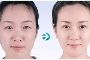 自体脂肪移植丰面部哪些地方,告别面部凹陷