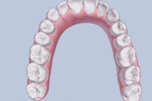 牙齿矫正,要多久? 我32岁可以做矫正吗?