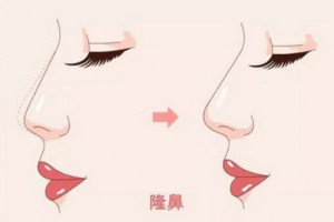 科普:为什么隆鼻之后有时会觉得鼻子是歪的?
