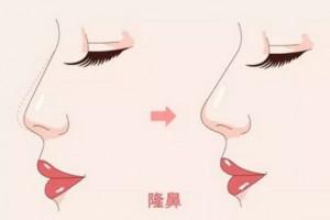 隆鼻前必看,想要隆鼻一定要选择好方式