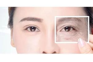 内切去眼袋是什么 内切去眼袋优势和适合人群