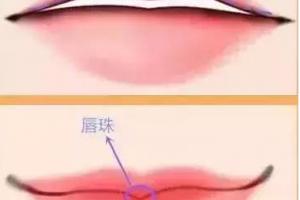 迷死人的微笑唇究竟是怎么做的?玻尿酸丰唇效果好不好