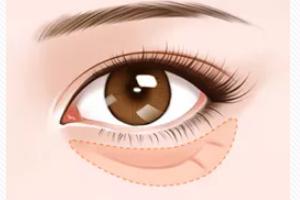 去眼袋手术后遗症有哪些