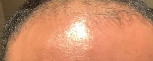 宁波小伙花6万到杭州新生植发医院种头发半年了还秃着