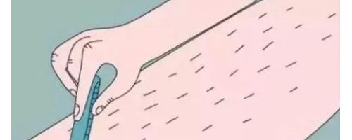 什么是激光脱毛?