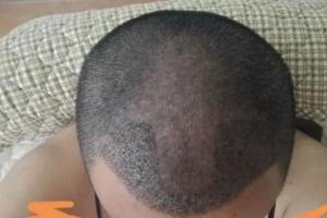 【植发科普】种植头发后出现发痒症状属于这种情况要警惕毛囊炎