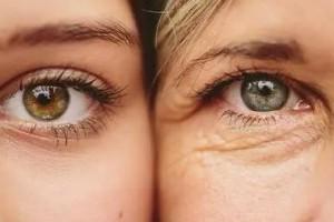 激光去眼袋的优点是什么?激光去眼袋有哪些注意事项?