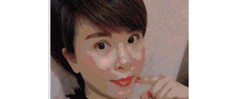 深圳艺星整形医生常德成:她脂肪填充后,脸居然变小了?