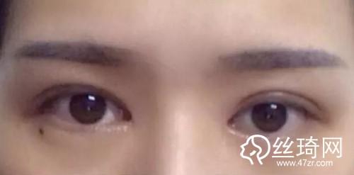 """深圳艺星整形医生朱辉:为什么你割的双眼皮会显得""""假""""?"""
