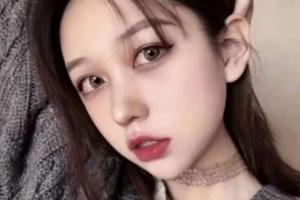 天津市眼科医院赵红整形价格表附埋线双眼皮案例展示