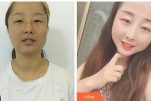 达州乔妍医疗美容诊所尹秀山整形价格表附白瓷娃娃案例展示