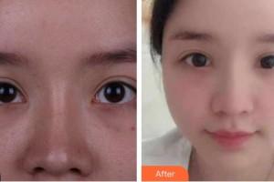 资阳市中医医院眼科王耀住院医师整形价格表附眼部修复案例展示