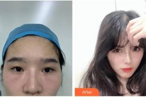 凉山爱尔眼科医院黄应祥副主任医师整形价格表附眼部修复案例展示
