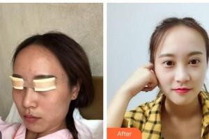湖南博雅眼科医院王成业主任医师整形价格表附切开双眼皮案例展示