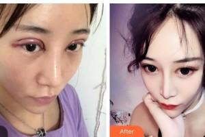 湖南省直中医医院眼科代敏主任医师整形价格表附切开双眼皮案例展示