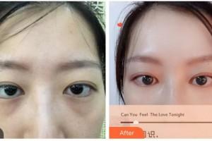 湖南省直中医医院眼科肖哲夫主任医师整形价格表附内切祛眼袋案例展示