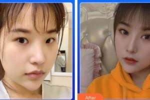湖南医药学院第一附属医院医疗美容科张雪梅主治医师整形价格表附切开双眼皮案例展示