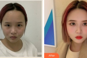 海口鹏爱医疗美容医院张晓阳整形价格表附皮肤美容案例展示