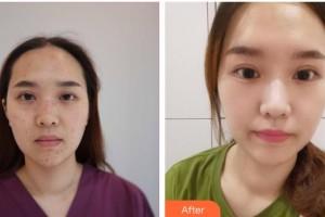 山西省整形外科医院刘晋元整形价格表附激光点痣案例展示