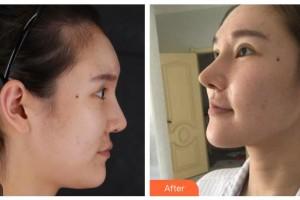 阳泉美亚医疗美容诊所邢艺缤整形价格表附肋软骨隆鼻案例展示