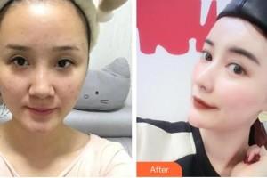 怀化市第一人民医院史萍整形价格表附鼻部综合案例展示