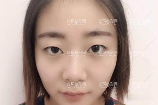 河南省人民医院整形科王凯双眼皮?知名医生推荐&费用表