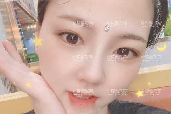 上海生命树医疗美容医院怎么样?鼻综合价目表和医生推荐