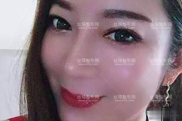 南昌大学美容医院怎样假体隆鼻日记|价目表|医生评价