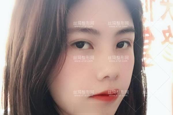 上海九院怎么样?双眼皮3个月效果|整形专家详情