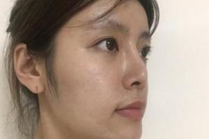 京民整形医院假体隆鼻靠谱吗?亲身经历分享&对比图