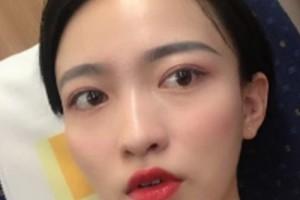 惠州中心医院整形美容祛斑效果?术后注意事项必看