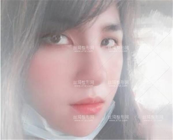 徐州二院激光美肤科隆鼻3个月效果|手术费用