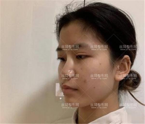 湘雅医院怎么样?隆鼻实拍案例图价格表医生口碑