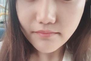 重庆原辰医疗美容医院下颌角怎么样?医生信息介绍