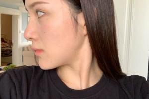 厦门第一医院美容科下颌角怎么样?术前术后对比图!