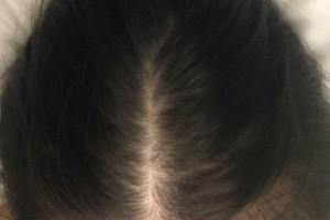 杭州新生毛发医院种植头发效果如何?附案例图测评!
