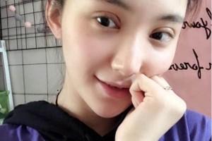 上海千美医疗美容院定点双眼皮?术后术前明显效果~