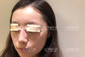上海九院双眼皮哪个医生做的好?附双眼皮案例图+价格表
